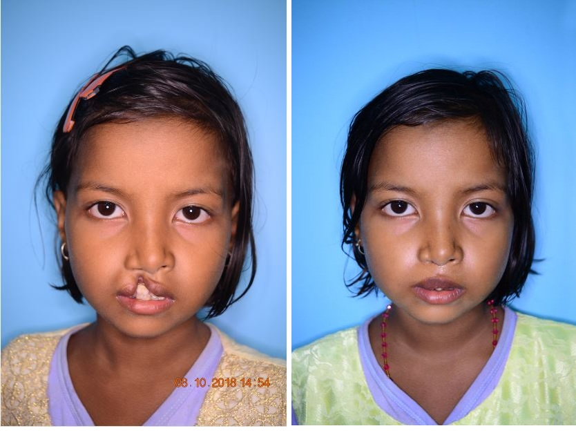Mission Smile Guwahati Comprehensive Cleft Care Centre Archives